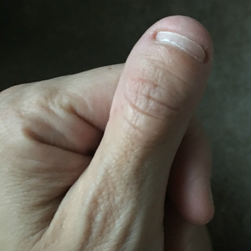 Have you ever seen a dwarf thumb? I have been sucking my thumb and pulling my hair out since I was two years old.