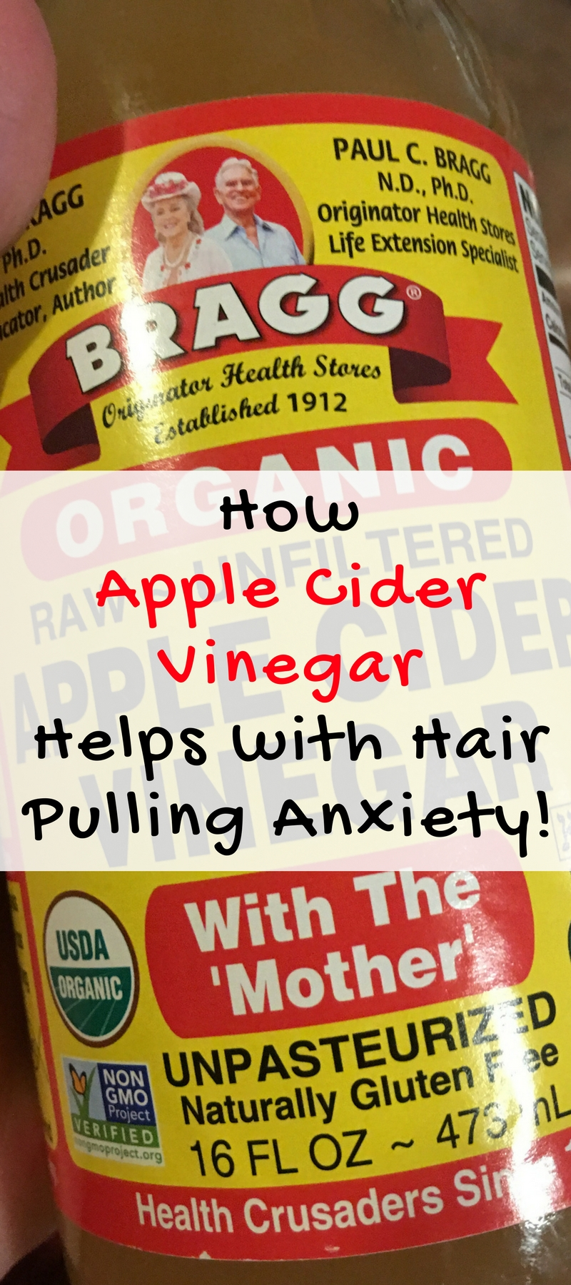 I use apple cider vinegar for hair pulling anixety. It helps my overall mental health which is good for trichotillomania. It's one of those products you can buy anywhere and it does just about everything you can think of!