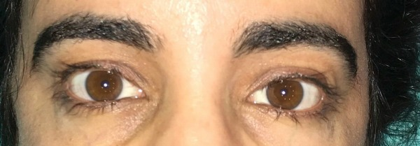 Trichotillomania Success Story. See how Rosa and her eyelash pulling treatment that worked for her, maybe it will help you stop pulling too!