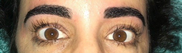 Does Obsessive Eyelash Pulling Keep You From Enjoying Life? Read Rosa's Success Story Of Overcoming Trichotillomania. A Hair Pulling Disorder.